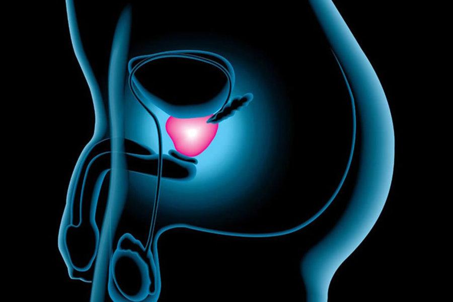 симптомы микоплазменного простатита